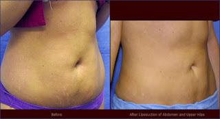 liposuccion en abdomen fotos