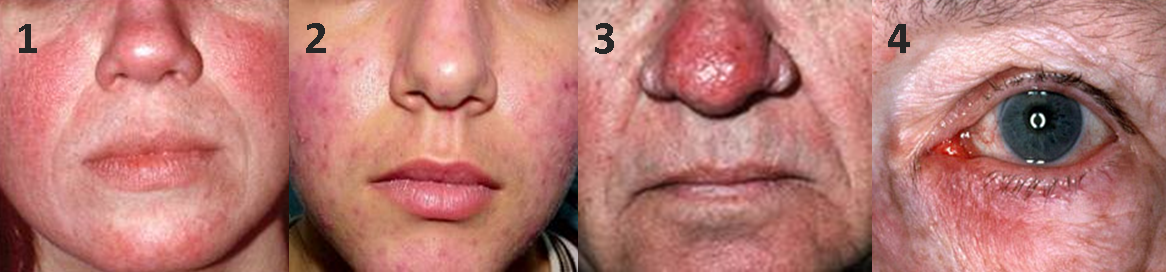 Rosacea | American Academy of Dermatology