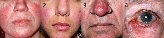 Rosacea MooGoo Skin Care