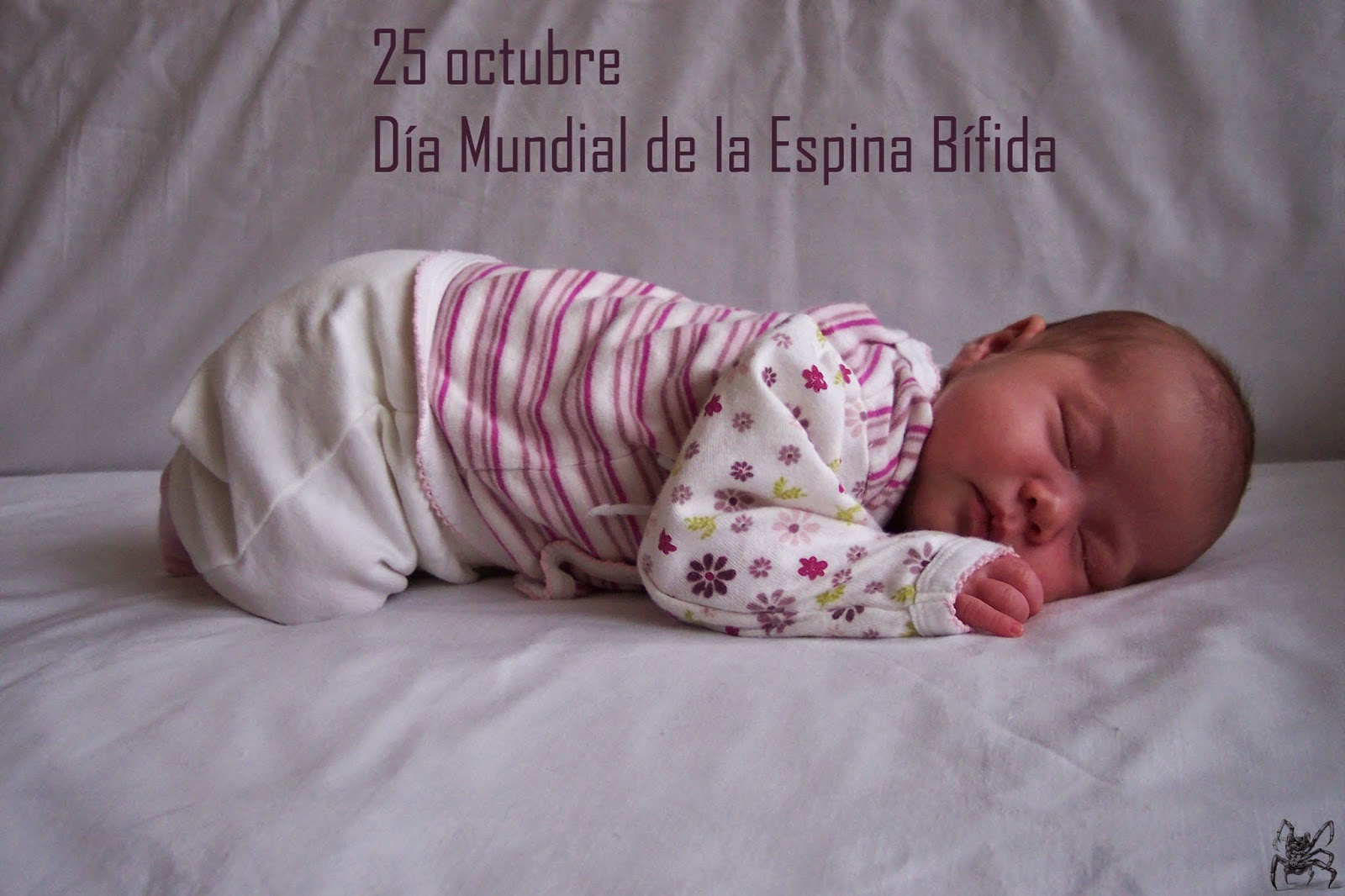 El 25 de octubre es el día mundial de la espina bífida