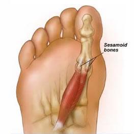 douleur sous le pied droit en marchant