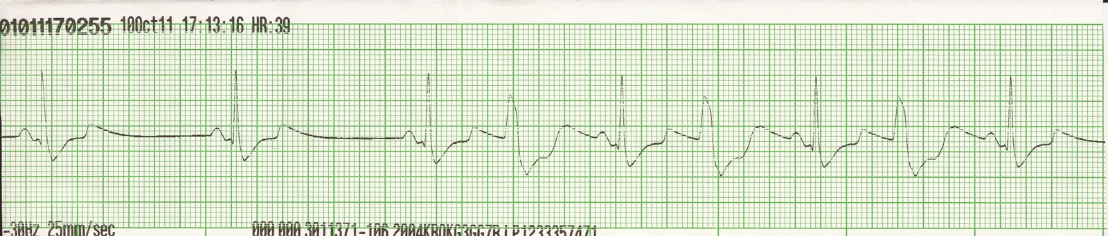 Ventricular Bigeminy Rhythm Ventricular Bigeminy