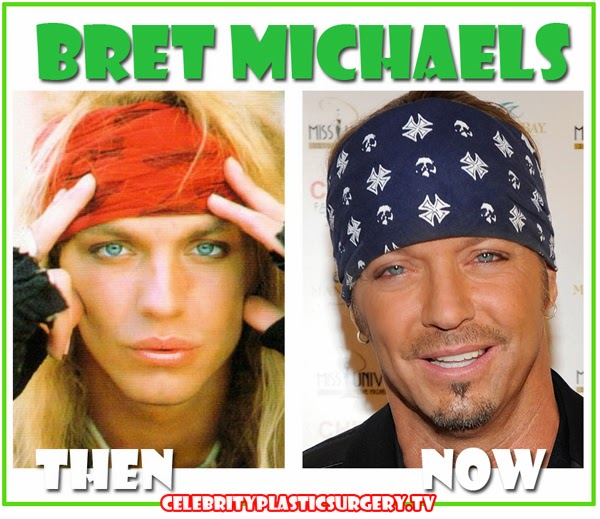 Has Bret Michaels Plastic Surgery Before And After Before And After