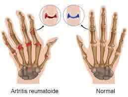 Disturbed Body Image related to Rheumatoid Arthritis
