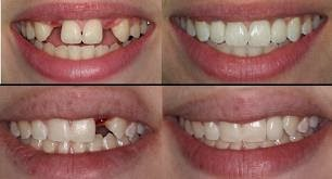 http://www.dentist-salem-india.com/specialty-treatments-dental-implants.php