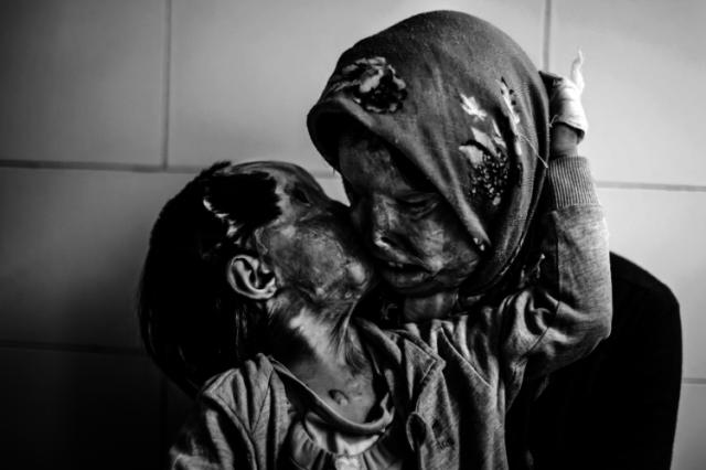 atacados con ácido por su marido