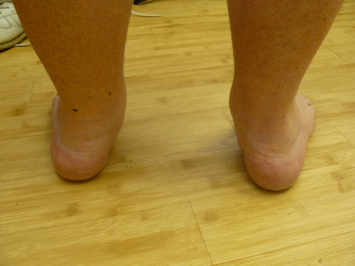 Adult Acquired Flat Feet