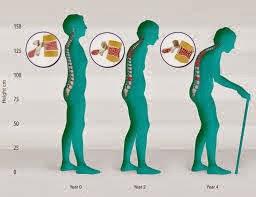 cara mengobati osteoporosis secara alami