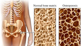 Cegah Osteoporosis
