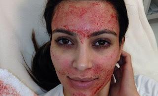 Kim Kardashian y tratamiento de belleza con sangre