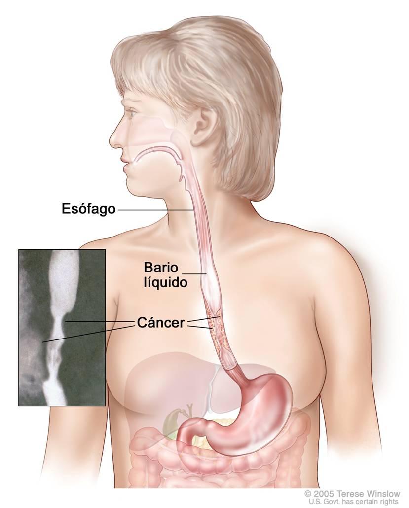 Todo para el Radiologo: febrero 2011