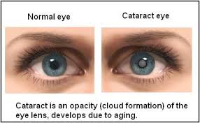 Cataract Surgery In Delhi