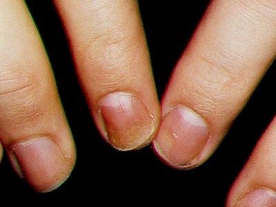 Los preparados para el intestino a atopicheskom la dermatitis