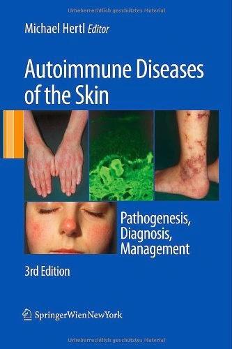 http://www.kingcheapebooks.com/2014/12/autoimmune-diseases-of-skin.html