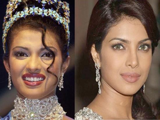 Chatter Busy Priyanka Chopra Surgery