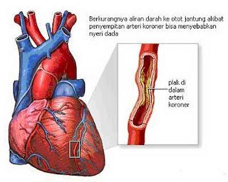 penyumbatan pembuluh darah jantung