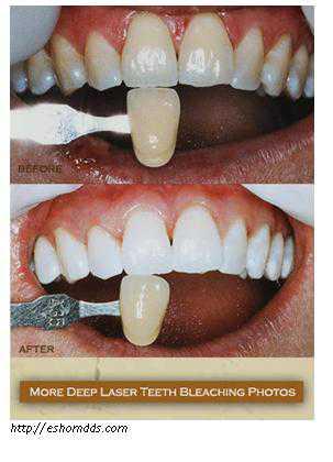 Cara Memutihkan Gigi Secara Instan Dengan Perawatan Tooth Bleaching