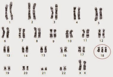 Trisomi 18 penderita sindrom Edward pada wanita
