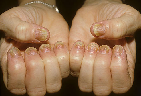 Nearly everyone with psoriasis of the nails also has psoriasis somewhere on