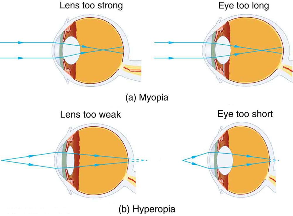 Eye Correction Numbers : Tubular (tuberous) Breast