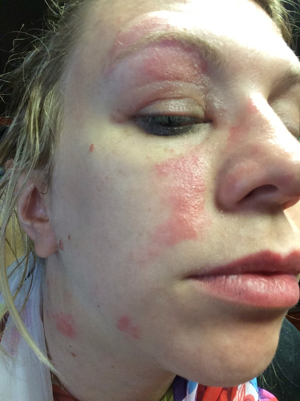 how to get rid of poison oak on face