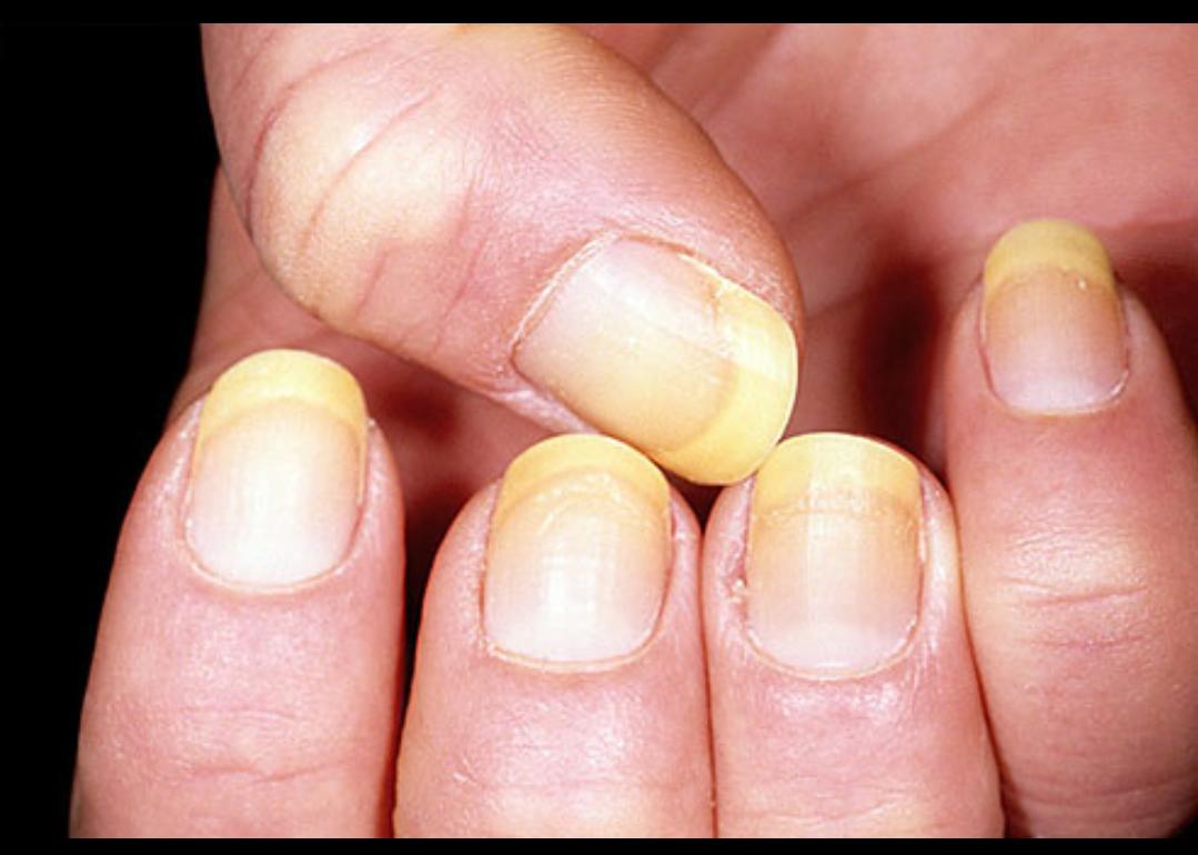 Was deine Fingernägel über deine Gesundheit verraten - Gesunde Tipps