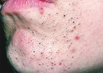 how to clear blackheads on face