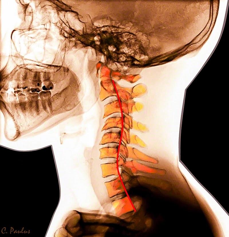 Color X-Ray Cervical Spondylosis