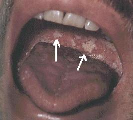 an overview of oral thrush and its different types Types of stomatitis types of stomatitis include: professor of oral medicine, university of california, san francisco mouth sores-topic overview video.