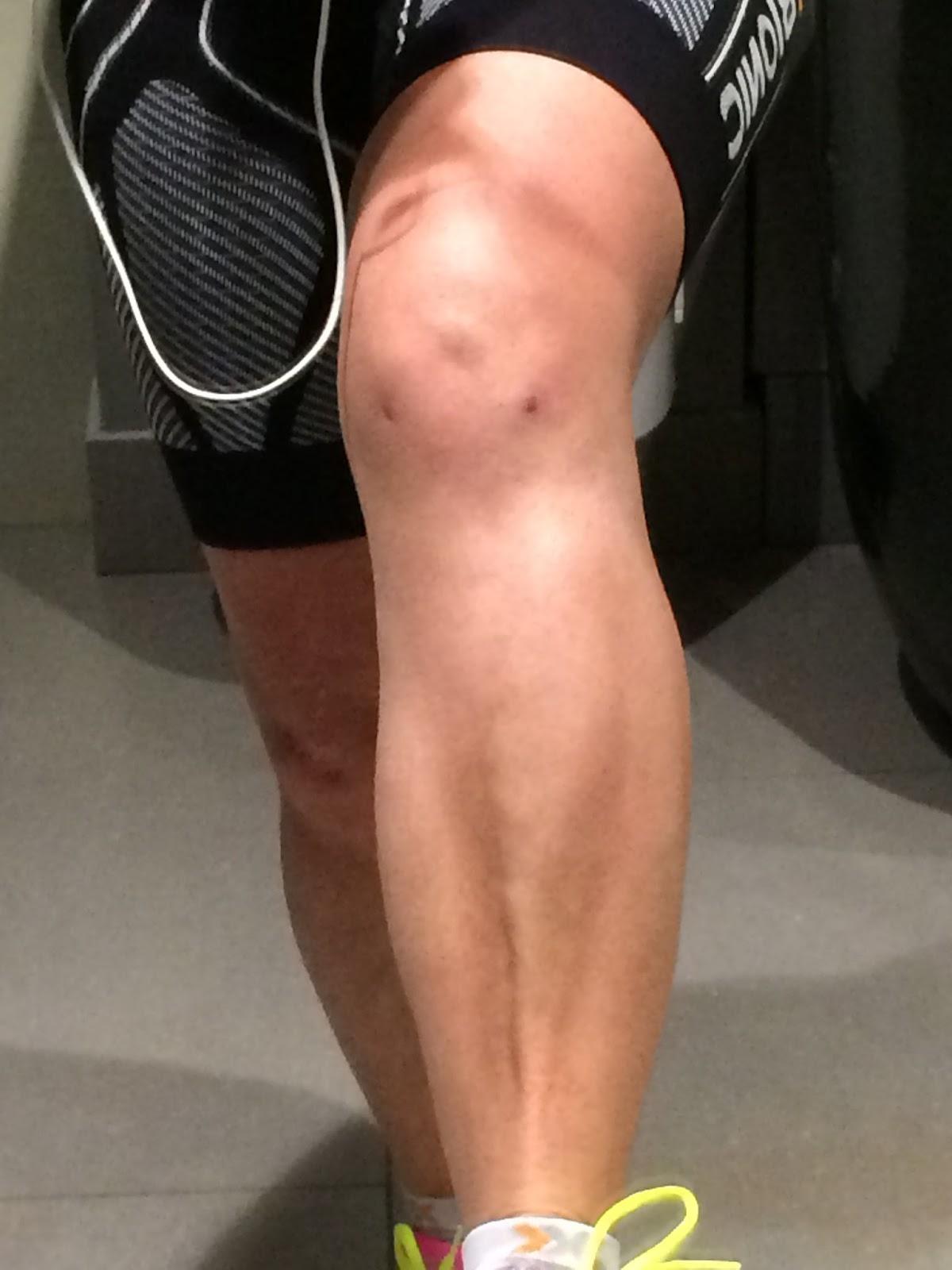 kikkertoperation knæ