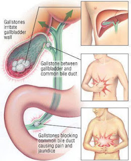pancreas leaking after surgery