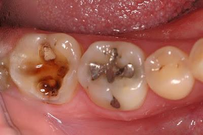 Penyebab Sakit Gigi Berlubang, Geraham, dan Gusi Berkepanjangan tidak Kunjung Sembuh