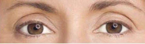 olhos profundos