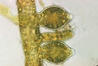 Xanthophyceae
