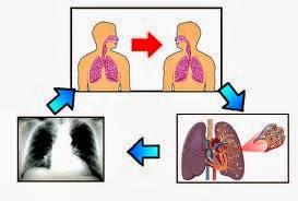 Obat Paling Cepat Untuk Menyembuhkan Penyakit Tuberkulosis