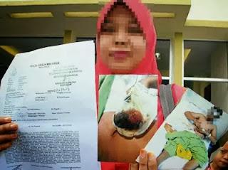 Wanita Mendakwa Buah Zakar Suaminya Pecah Dibelasah Polis