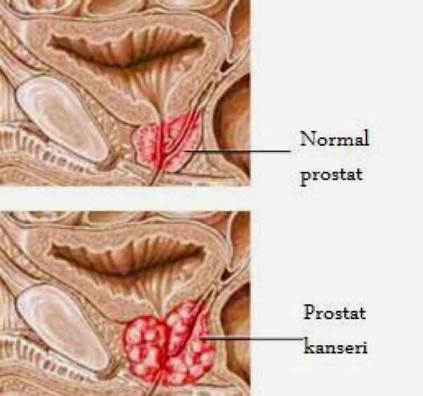 Как в домашних условиях лечить гиперплазию эндометрия