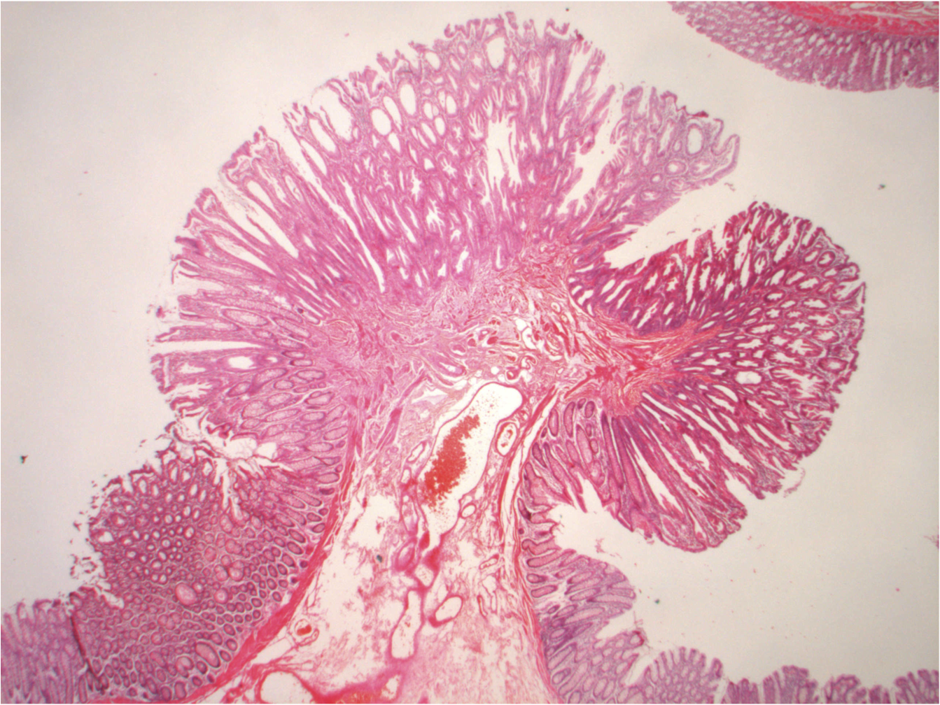 Cellular Nutrition Why The Villi In Our Small Intestine Are