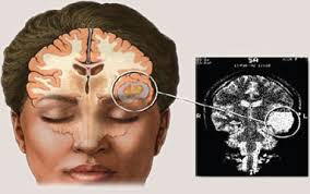 Obat Alami Kanker Otak