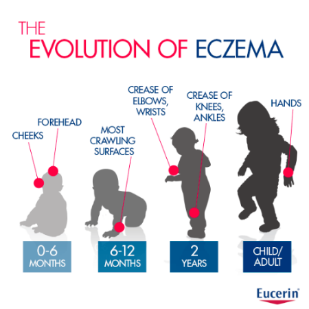 Evolution of Eczema