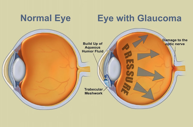 Glaucoma Causes, Types, Symptoms, Diagnosis, Treatment, Prevention