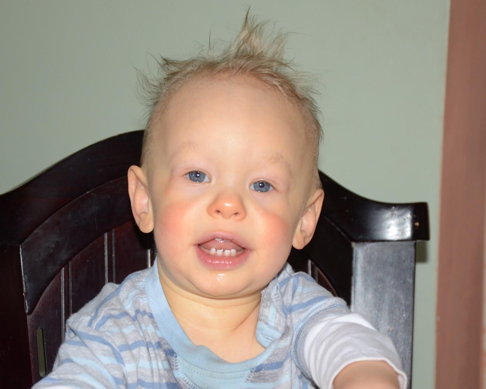 Синдром вильямса фото детей и взрослых
