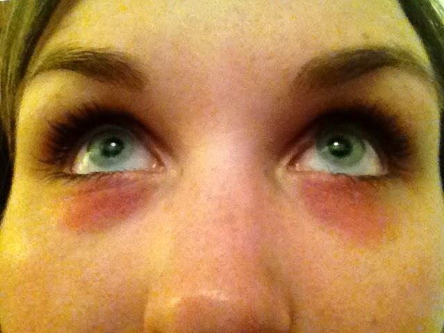 Sore, puffy, dry, red eyelids... Help needed, as my ...