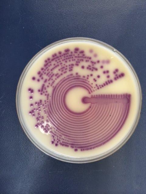 microbiologylog