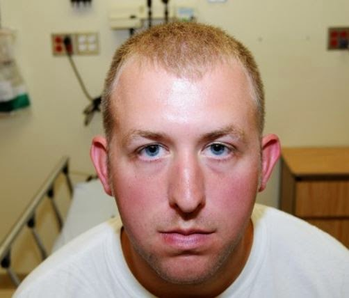 "This was the photograph provided to the grand jury which was supposed to ""prove"" the existence of the facial injuries suffered by Darren Wilson's at the hands of Michael Brown: Apparently jury members were supposed to stare at the photo and imagine the injuries."