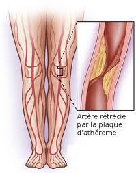 Tratamente naturiste impotriva arteritei