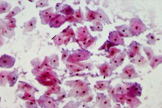 vaginosis-gardnerella-vaginalis