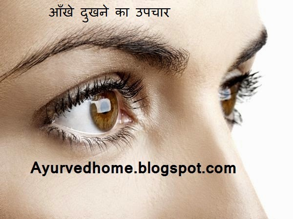 About Eye Diseases in Hindi,  आँखे आने का उपचार , Aankhen lal Hona