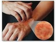 penyakit gatal