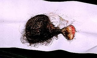 It s a tumor or the immaculate conceptionOvary Cyst With Teeth And Hair
